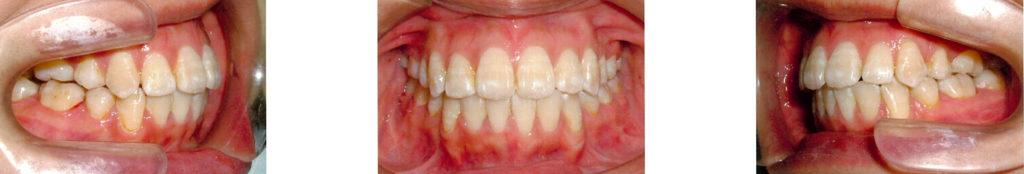 歯列矯正 施術前