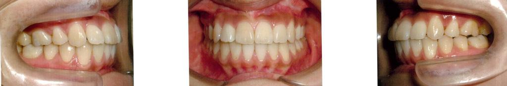 歯列矯正 施術後